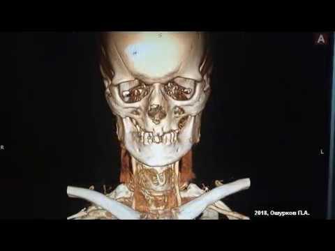 Анатомия сосудисто-нервного пучка на шее. Каротидная эндартерэктомия при высокой бляшке ВСА