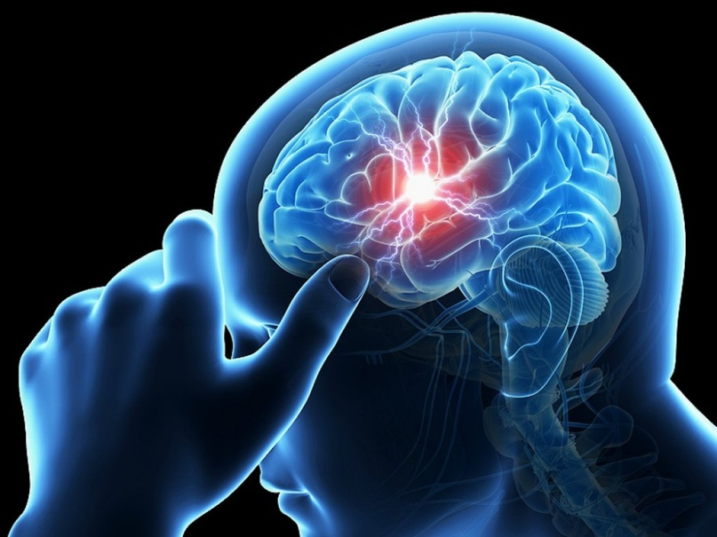 Эпилепсия в вопросах и ответах, изображение №3