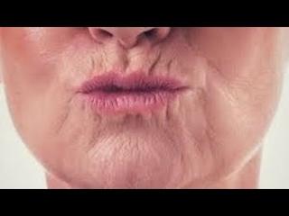 БЕЗ УКОЛОВ убрать КИСЕТНЫЕ МОРЩИНЫ. Морщины вокруг губ.