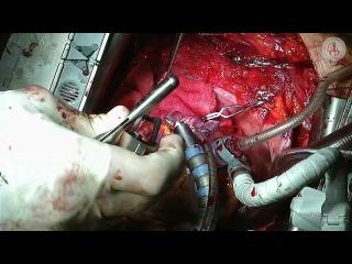 Эндартерэктомия из ПНА и 3 МКШ на работающем сердце. (off-pump).