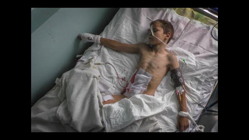 9yo Vladik sees his mother killed buy Ukraine Shelling: Donetsk Protest