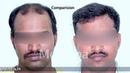 Hair Transplant at MEDISPA INDIA| Delhi |Jaipur|Bengaluru|UAE|USA Dr Suneet Soni