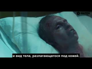 """Как создавались ожоги от радиации в сериале """"Чернобыль"""" от HBO NR"""