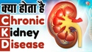 What Is a Chronic Kidney Disease CKD ? Chronic kidney disease Treatment –Kidney Treatment in Delhi