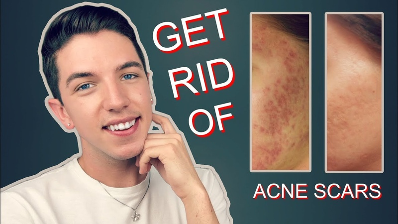 How to Get Rid Rid of Acne Scars Completely